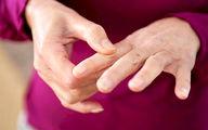 ۱۶ درصد ایرانی های بالای ۱۵ سال آرتروز دارند
