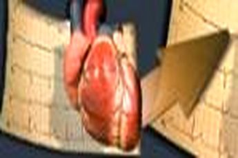 مفاهیم: سکته قلبی چیست؟