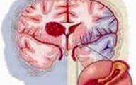 خطر سکته قلبی برای افراد عصبانی