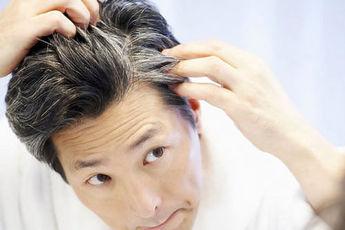 چرا مو در جوانی سفید میشود؟