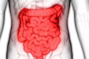 درمان بیماری کرون با سلول های بنیادی