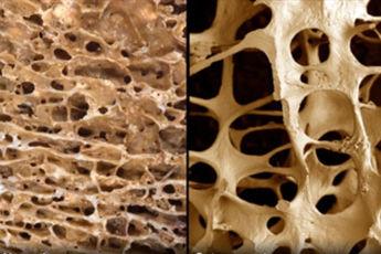 تشخیص پوکی استخوان از روی تراشههای ناخن