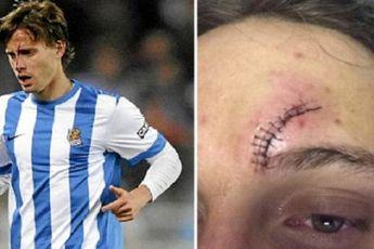 مصدومیت خطرناک مهاجم سوسیه داد در برخورد با بازیکن سابق بارسا + عکس