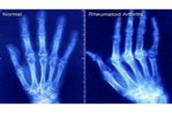 اسکنر لیزری برای تشخیص قبل از وقوع آرتروز