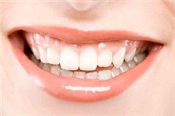 چطور استرس بر سلامتی دهان اثر میگذارد؟