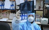 شناسایی ۲۴۴۹ بیمار جدید مبتلا به کرونا